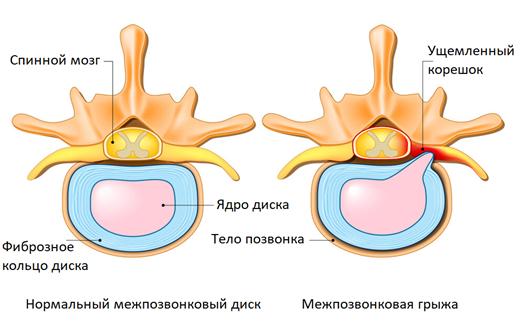 Основные причины боли в спине и ногах