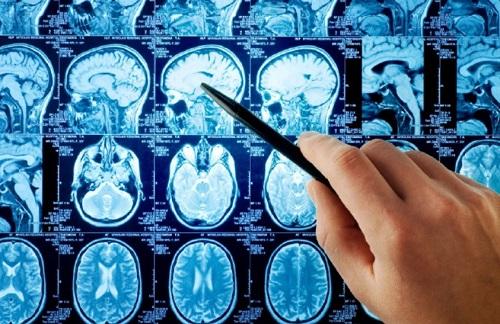 Неврология в Ростове-на-дону